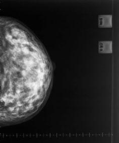 6154052 - x-ray mammogram